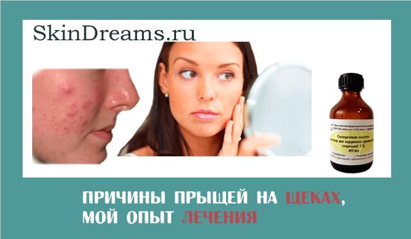 Прыщи на щеках у женщин причины и лечение